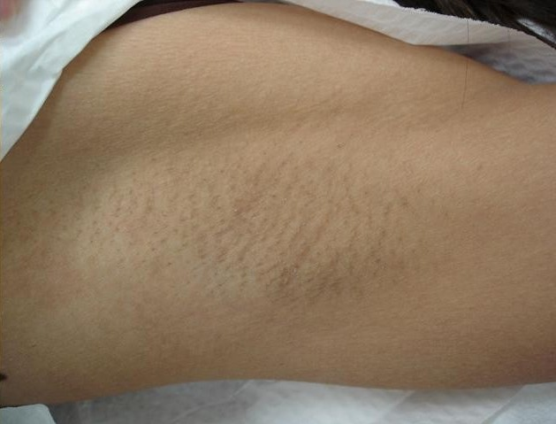 After Hair Removal Treatment