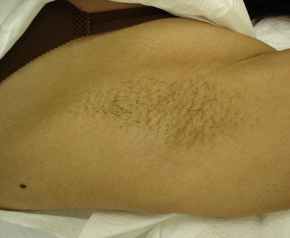Before Hair Removal Treatment